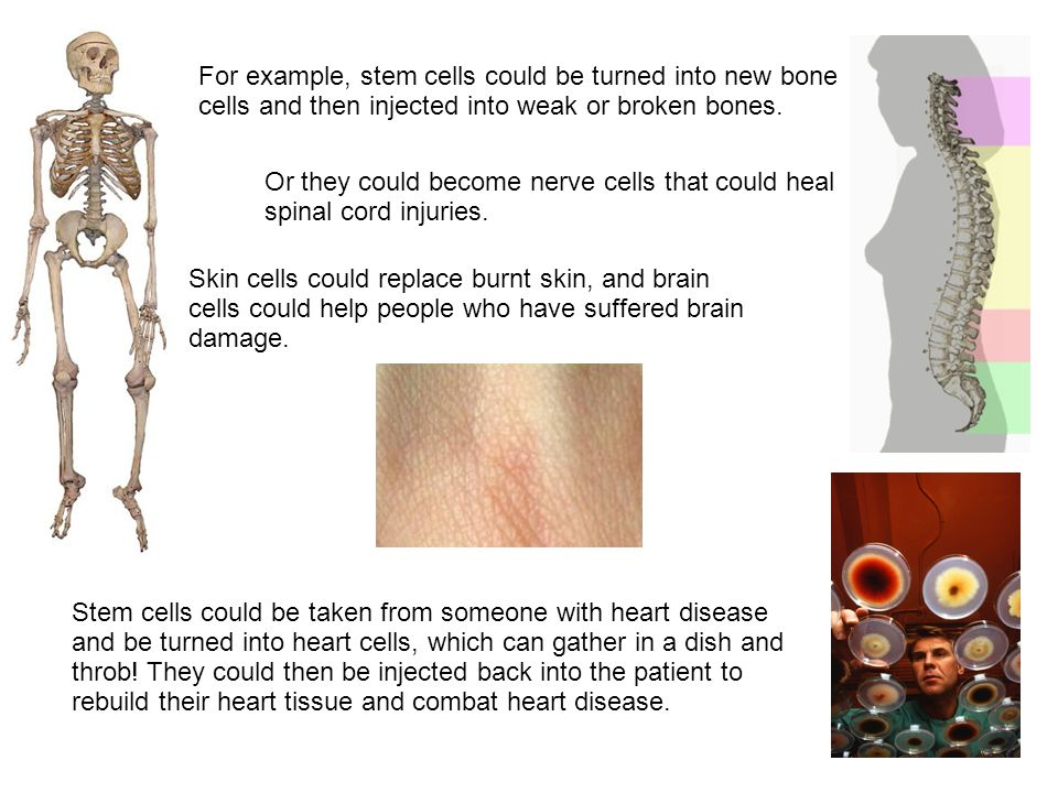 For example, stem cells could be turned into new bone cells and then injected into weak or broken bones. Skin cells could replace burnt skin, and brai