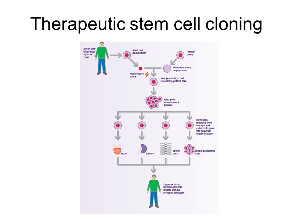 Therapeutic stem cell cloning