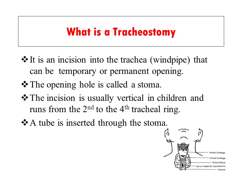 What is a Tracheostomy It is an incision into the trachea (windpipe) that can be temporary or permanent opening. The opening hole is called a stoma. T