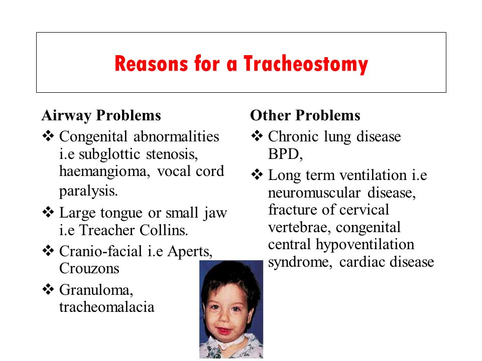 Reasons for a Tracheostomy Airway Problems Congenital abnormalities i.e subglottic stenosis, haemangioma, vocal cord paralysis. Large tongue or small