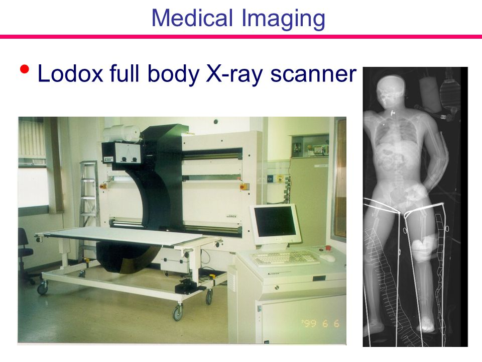 Lodox full body X-ray scanner Medical Imaging