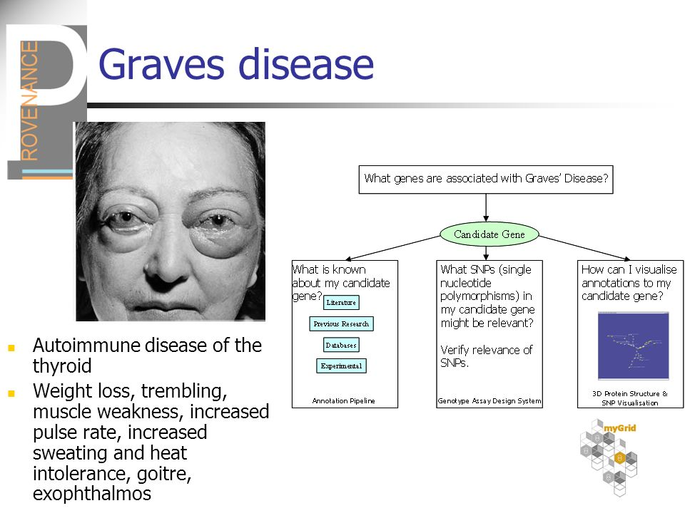 Graves disease Autoimmune disease of the thyroid Weight loss, trembling, muscle weakness, increased pulse rate, increased sweating and heat intolerance, goitre, exophthalmos