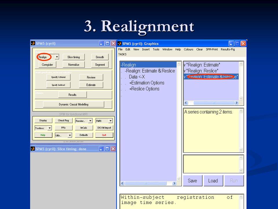 3. Realignment