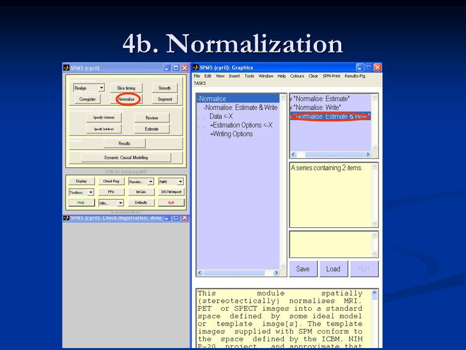 4b. Normalization