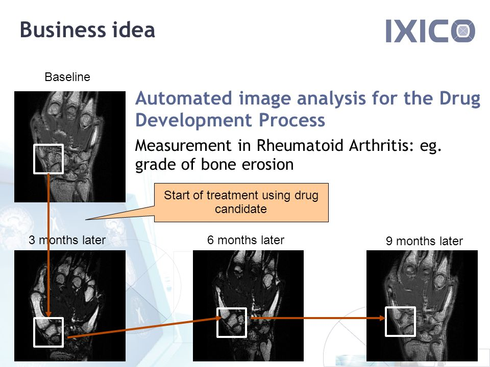 Business idea 3 months later6 months later 9 months later Automated image analysis for the Drug Development Process Measurement in Rheumatoid Arthritis: eg.