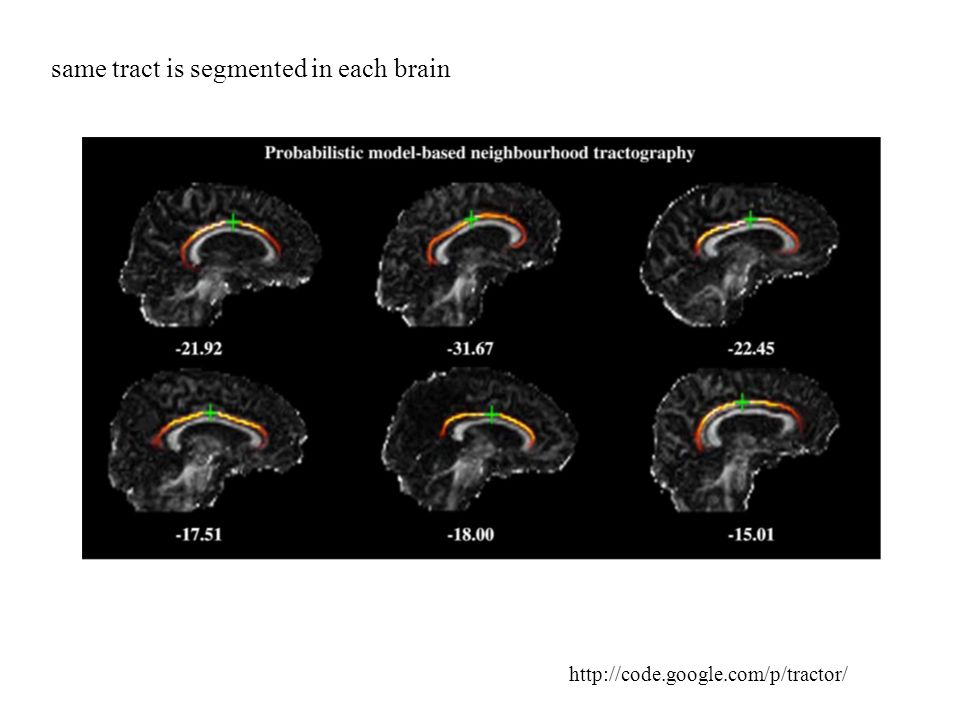 same tract is segmented in each brain http://code.google.com/p/tractor/