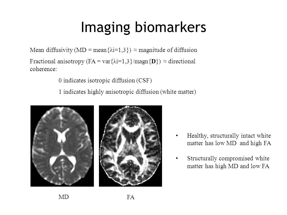 A Voxel-Based Analysis Approach We can look for correlations of FA with other parameters in a hypothesis-free manner looking at the whole brain white matter Tract-based spatial statistics (TBSS) is a voxel-based analysis approach customised for the study of diffusion parameters in white matter Aligned Averaged Thinned FA projected into skeleton Stats Smith et al.