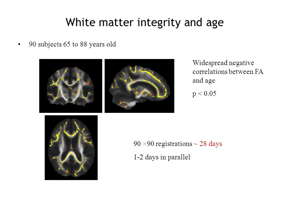 White matter integrity and age 90 subjects 65 to 88 years old 90 ×90 registrations ~ 28 days 1-2 days in parallel Widespread negative correlations between FA and age p < 0.05