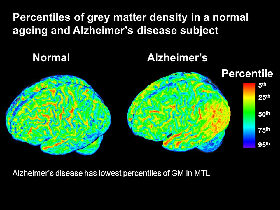 Percentiles of grey matter density in a normal ageing and Alzheimers disease subject AlzheimersNormal Alzheimers disease has lowest percentiles of GM