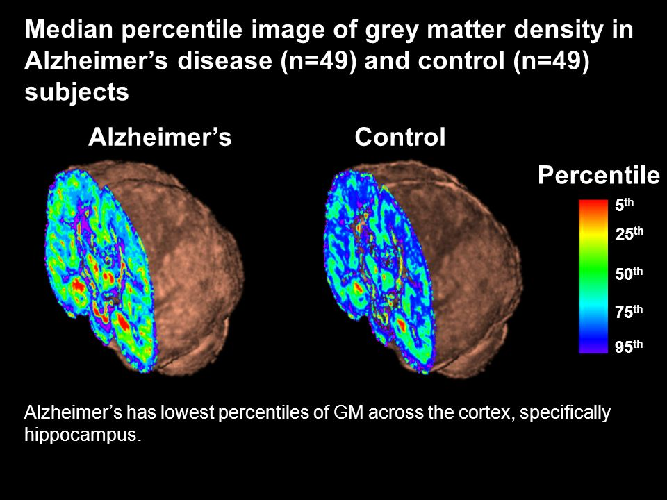 AlzheimersControl 5 th 95 th 50 th 25 th 75 th Percentile Median percentile image of grey matter density in Alzheimers disease (n=49) and control (n=4