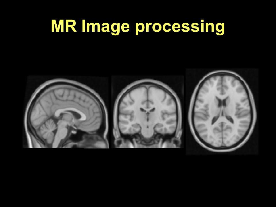 Brain extraction