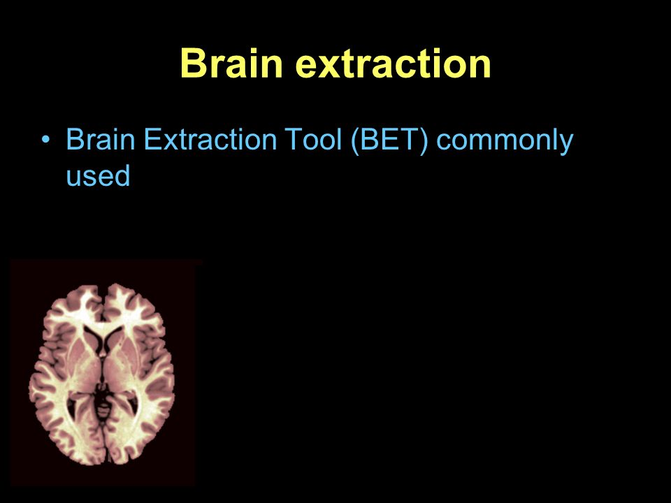 Brain Extraction Tool (BET) commonly used
