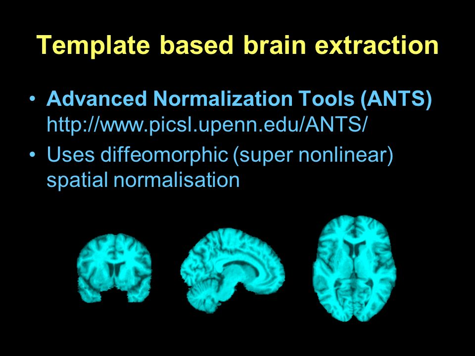 Template based brain extraction Advanced Normalization Tools (ANTS) http://www.picsl.upenn.edu/ANTS/ Uses diffeomorphic (super nonlinear) spatial norm
