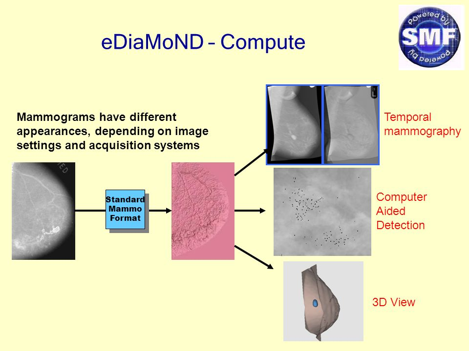 eDiaMoND – Compute Mammograms have different appearances, depending on image settings and acquisition systems Standard Mammo Format Standard Mammo Format Temporal mammography Computer Aided Detection 3D View