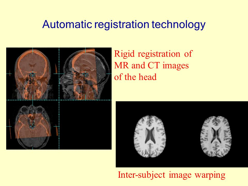 Automatic registration technology Rigid registration of MR and CT images of the head Inter-subject image warping