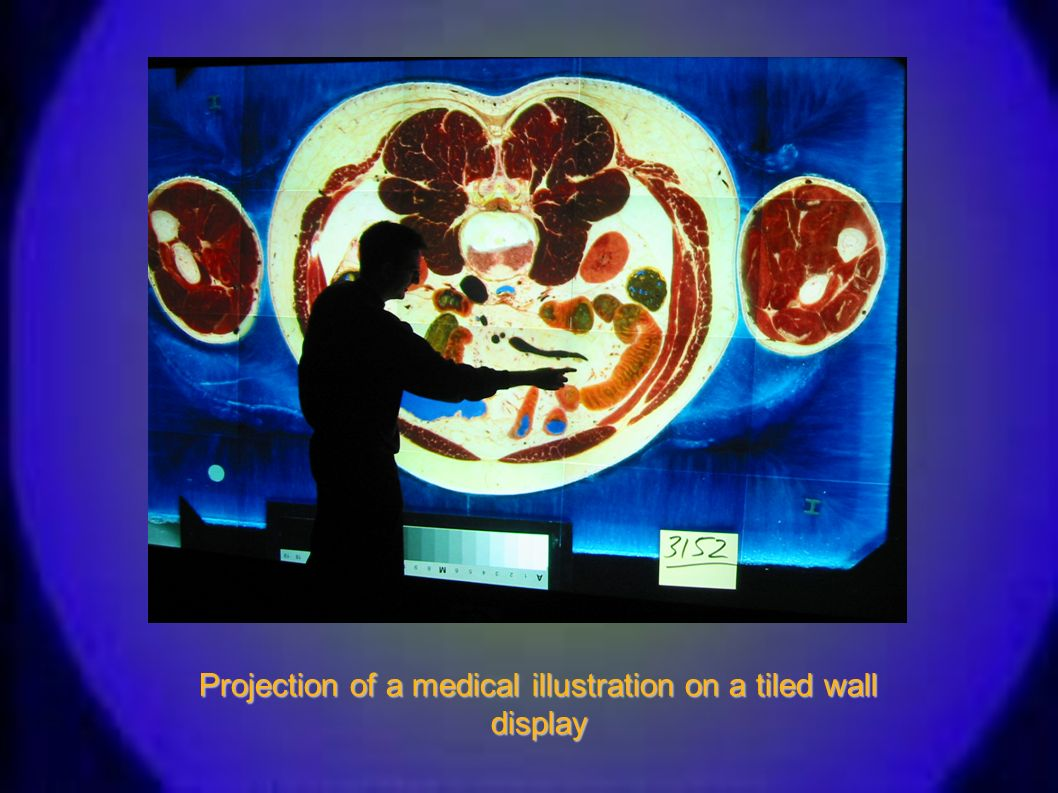 Projection of a medical illustration on a tiled wall display