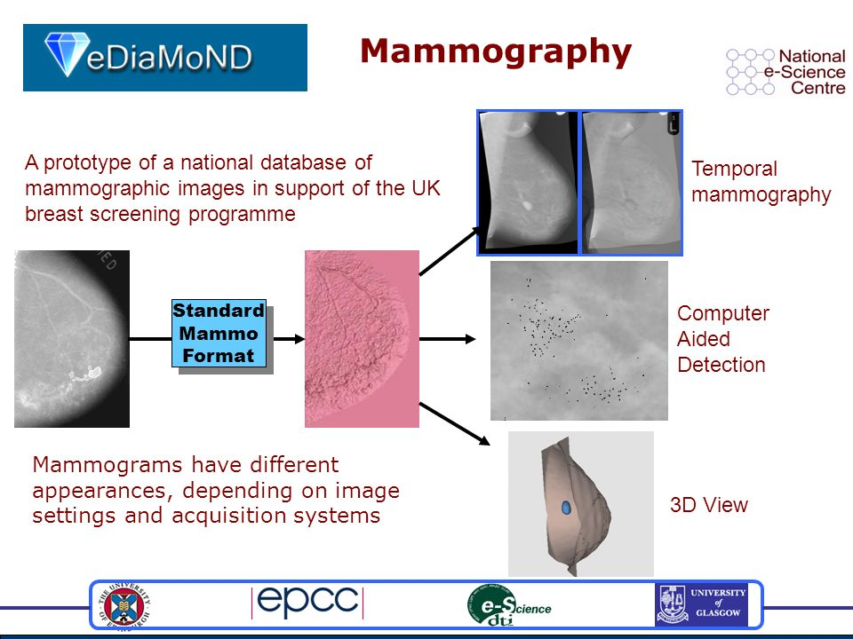 Mammography Mammograms have different appearances, depending on image settings and acquisition systems Standard Mammo Format Standard Mammo Format Tem