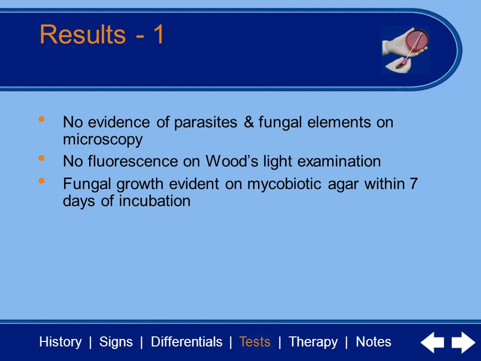 History | Signs | Differentials | Tests | Therapy | Notes Results - 1 Tests No evidence of parasites & fungal elements on microscopy No fluorescence o