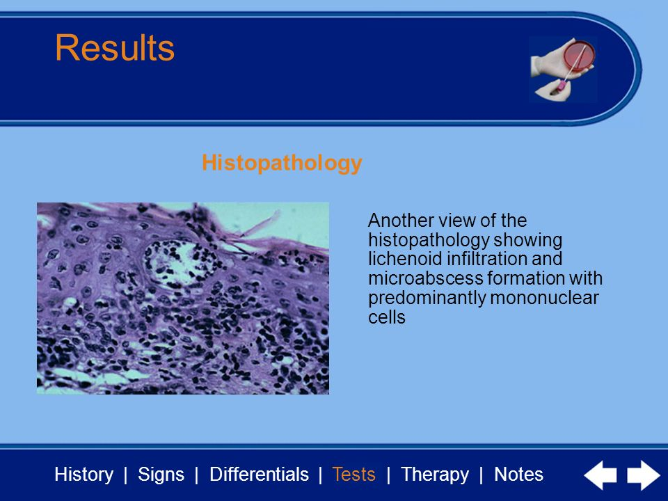 History | Signs | Differentials | Tests | Therapy | Notes Results Tests Another view of the histopathology showing lichenoid infiltration and microabscess formation with predominantly mononuclear cells Histopathology
