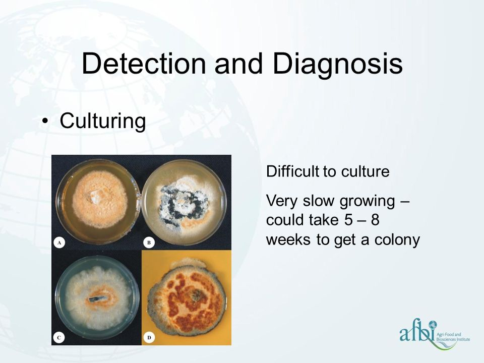 Detection and Diagnosis Culturing Difficult to culture Very slow growing – could take 5 – 8 weeks to get a colony