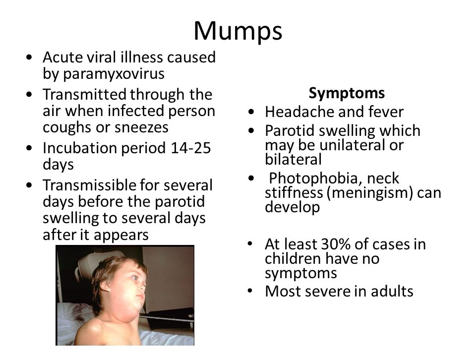characteristics treatment and prevention of mumps essay