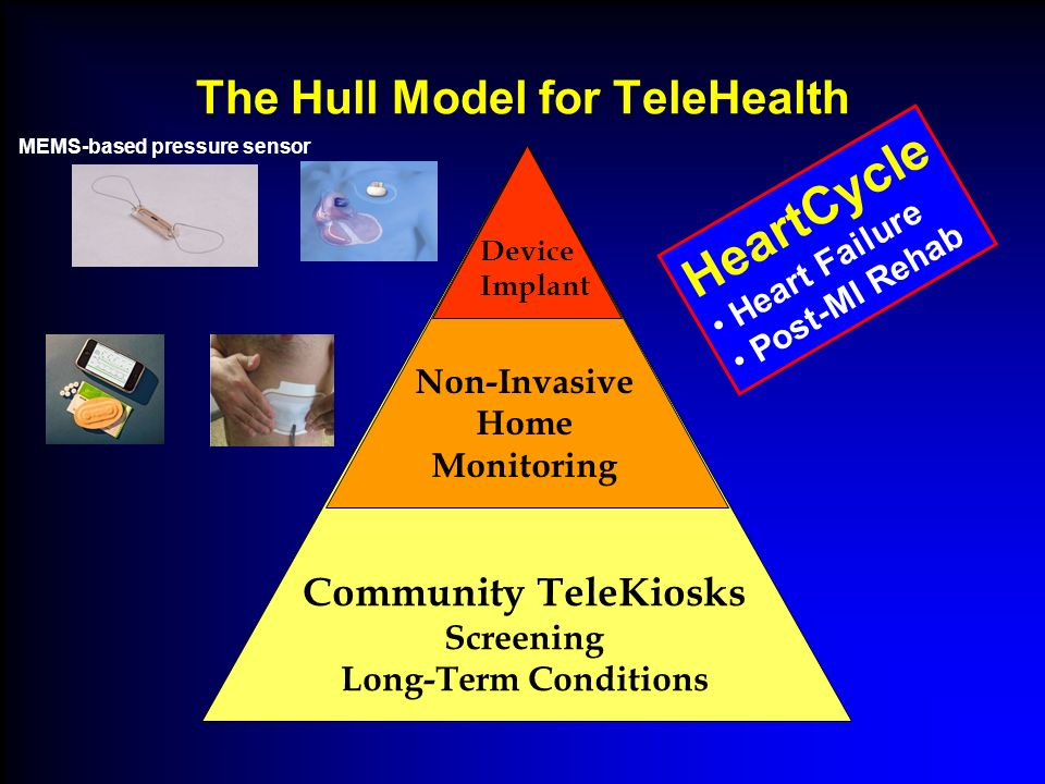 The Hull Model for TeleHealth Non-Invasive Home Monitoring Community TeleKiosks Screening Long-Term Conditions Device Implant HeartCycle Heart Failure Post-MI Rehab MEMS-based pressure sensor