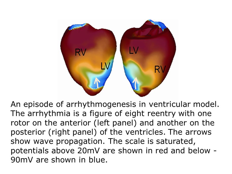 An episode of arrhythmogenesis in ventricular model.