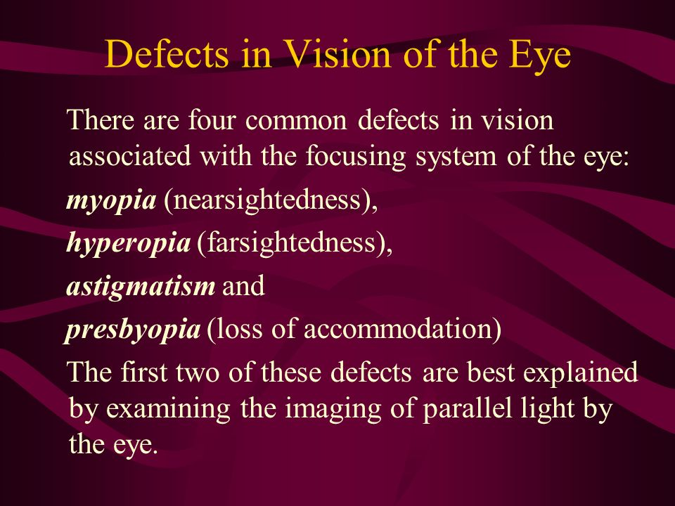 Defects in Vision of the Eye There are four common defects in vision associated with the focusing system of the eye: myopia (nearsightedness), hyperop