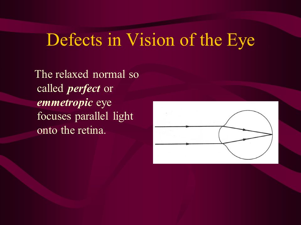 Defects in Vision of the Eye The relaxed normal so called perfect or emmetropic eye focuses parallel light onto the retina.