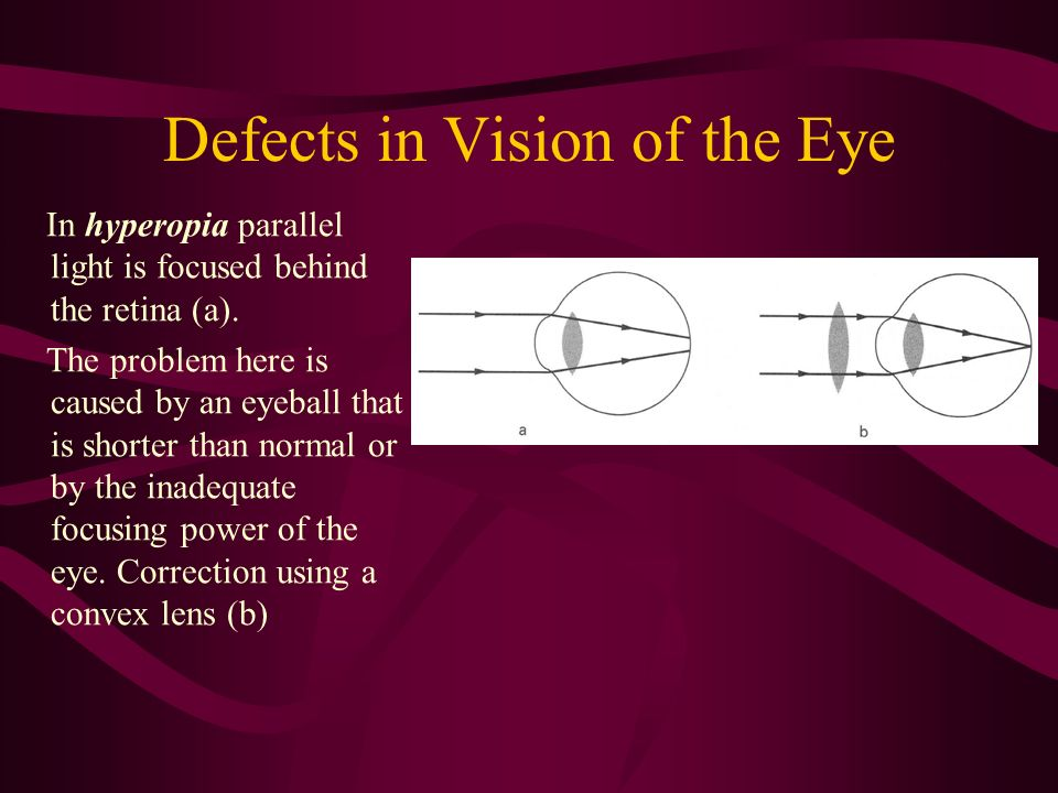 Defects in Vision of the Eye In hyperopia parallel light is focused behind the retina (a). The problem here is caused by an eyeball that is shorter th