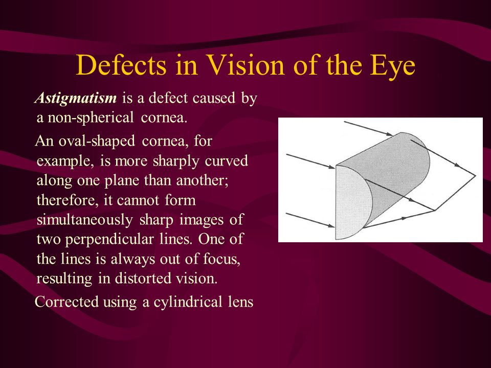 Defects in Vision of the Eye Astigmatism is a defect caused by a non-spherical cornea. An oval-shaped cornea, for example, is more sharply curved alon