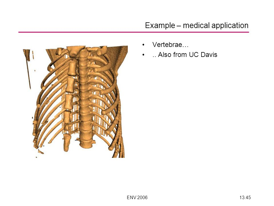 ENV 200613.45 Example – medical application Vertebrae….. Also from UC Davis