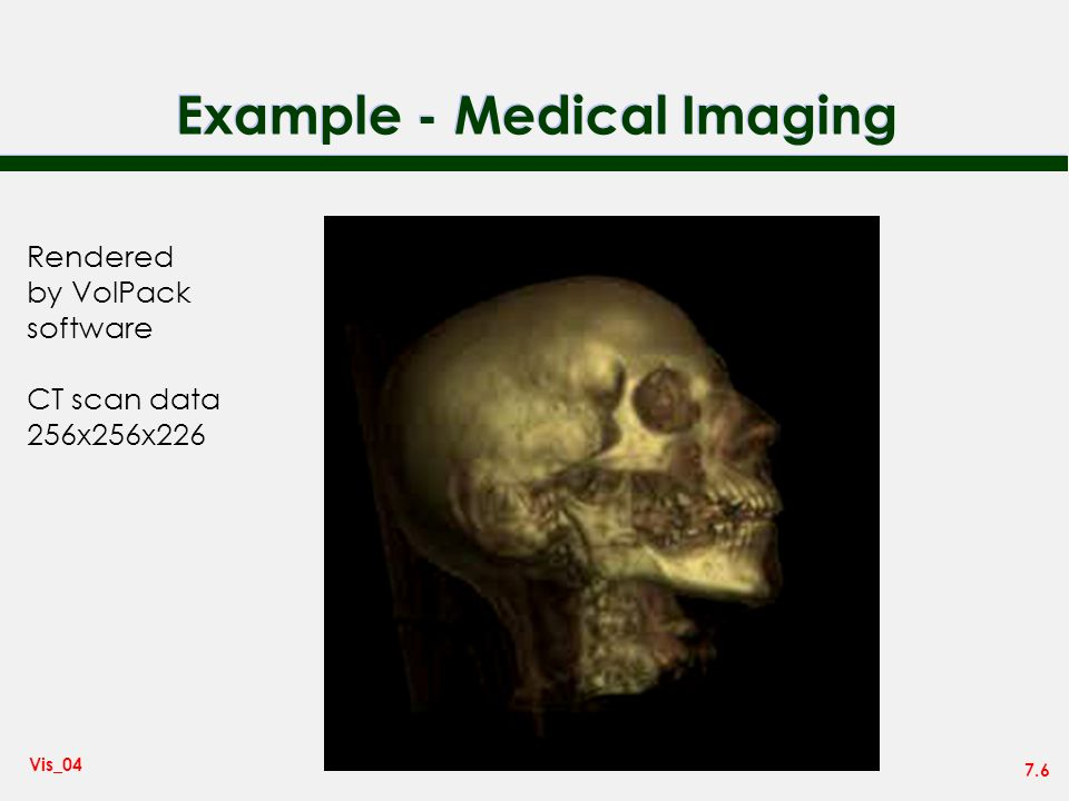 7.6 Vis_04 Example - Medical Imaging Rendered by VolPack software CT scan data 256x256x226