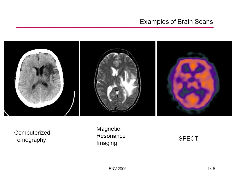 ENV 200614.5 Examples of Brain Scans Computerized Tomography Magnetic Resonance Imaging SPECT