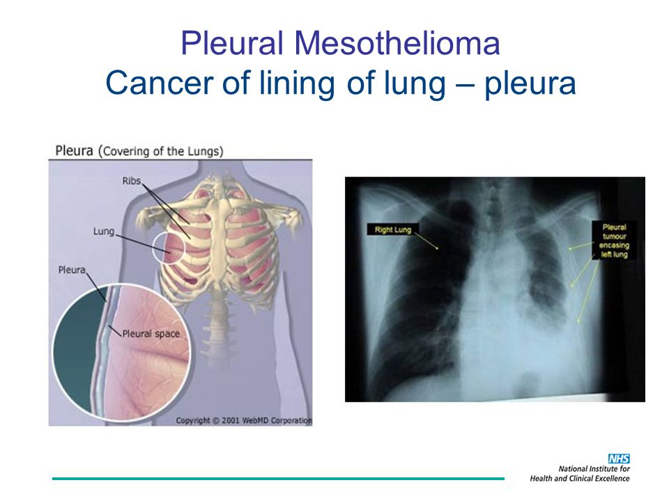 Pleural Mesothelioma Cancer of lining of lung – pleura