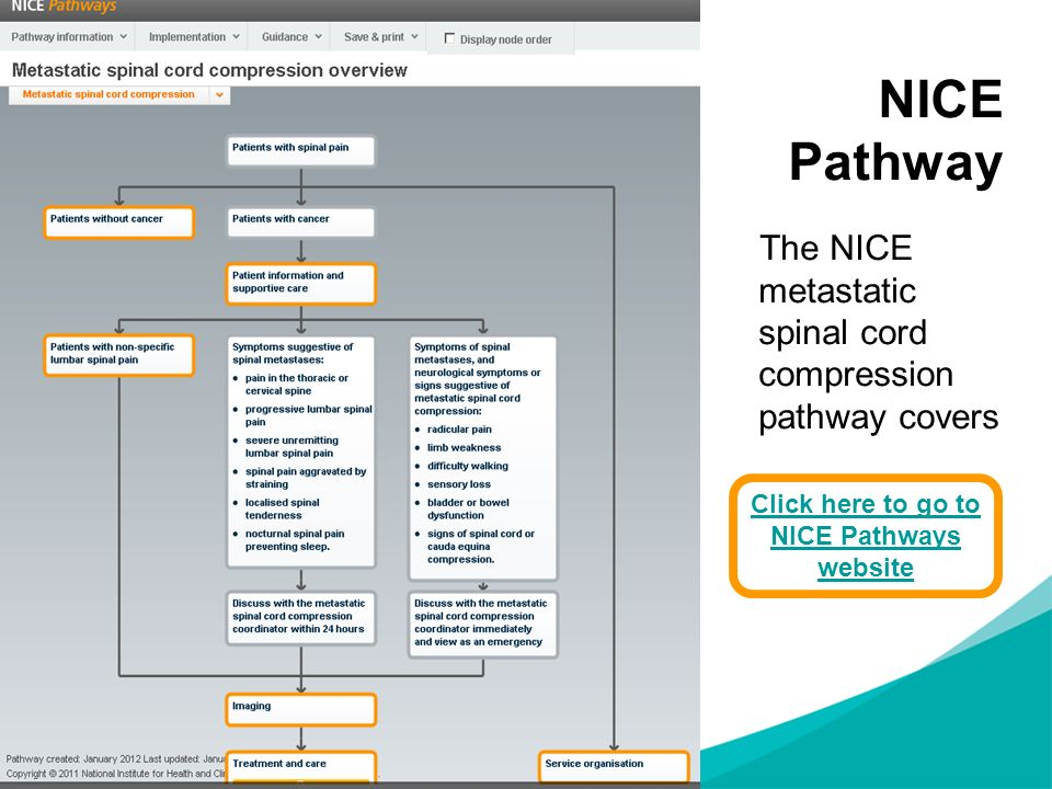 NICE Pathway The NICE metastatic spinal cord compression pathway covers Click here to go to NICE Pathways website