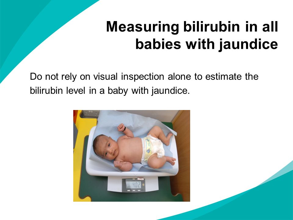 Do not rely on visual inspection alone to estimate the bilirubin level in a baby with jaundice. Measuring bilirubin in all babies with jaundice