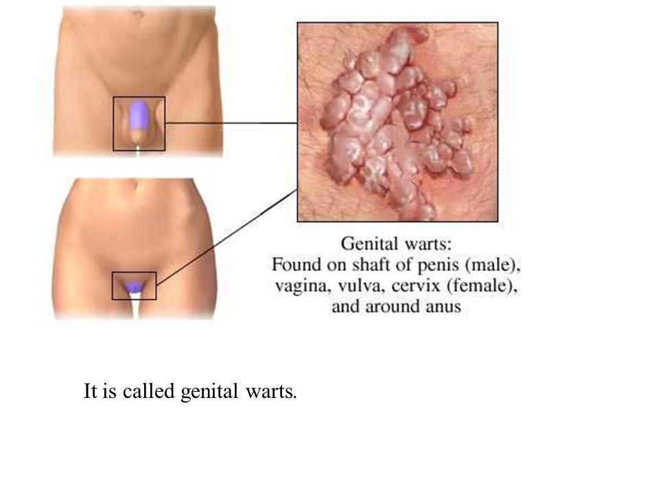 It is called genital warts.