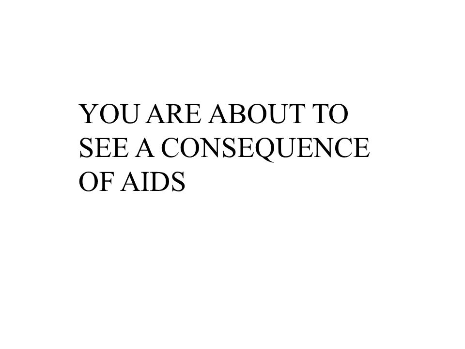 YOU ARE ABOUT TO SEE A CONSEQUENCE OF AIDS
