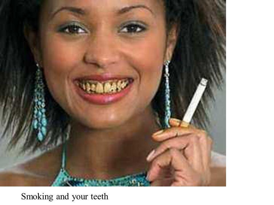 Smoking and your teeth