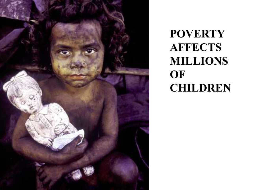 POVERTY AFFECTS MILLIONS OF CHILDREN