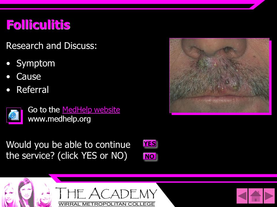 Folliculitis Research and Discuss: Symptom Cause Referral Go to the MedHelp website www.medhelp.orgMedHelp website Would you be able to continue the s