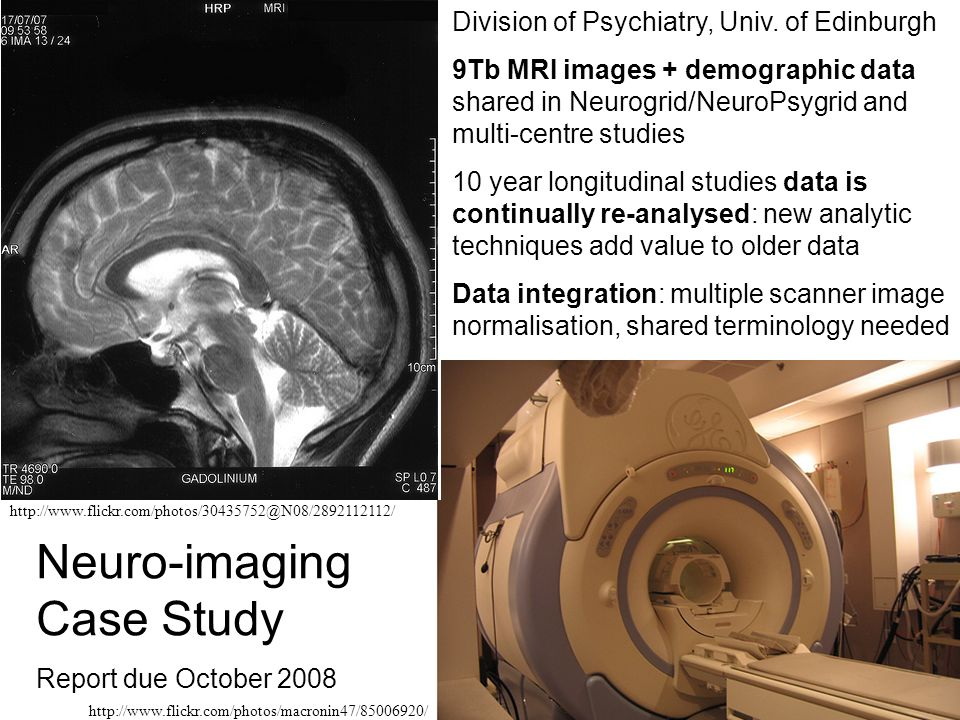 http://www.flickr.com/photos/30435752@N08/2892112112/ http://www.flickr.com/photos/macronin47/85006920/ Neuro-imaging Case Study Report due October 2008 Division of Psychiatry, Univ.