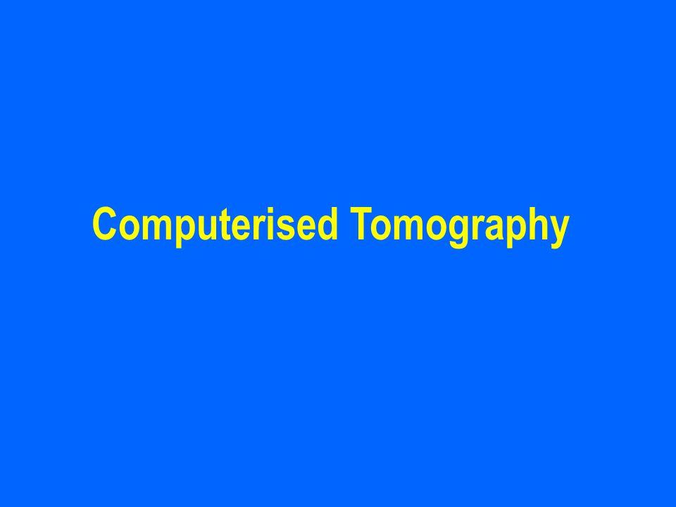 Computerised Tomography