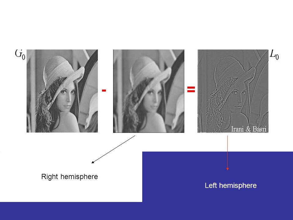 Example Right hemisphere Left hemisphere