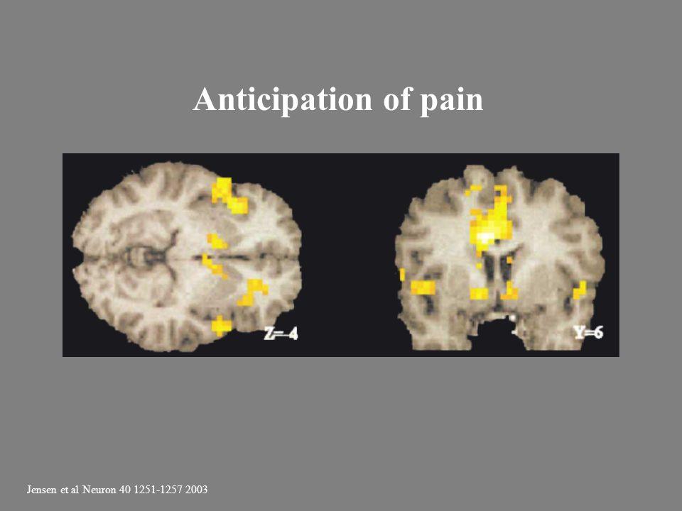 Anticipation of pain Jensen et al Neuron 40 1251-1257 2003