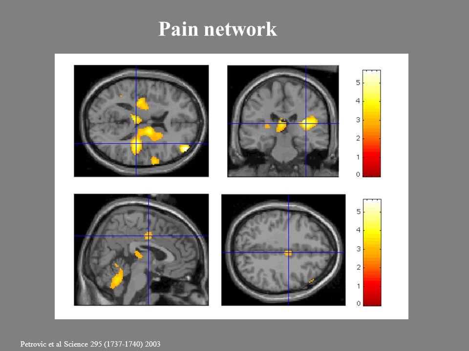 Pain network Petrovic et al Science 295 (1737-1740) 2003