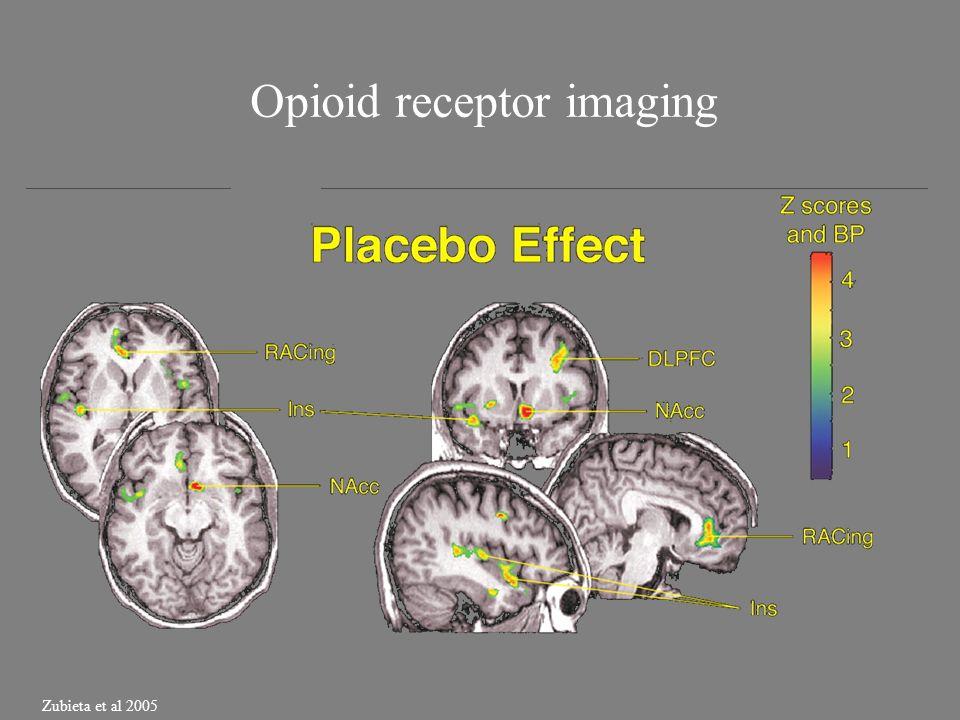 Opioid receptor imaging Zubieta et al 2005
