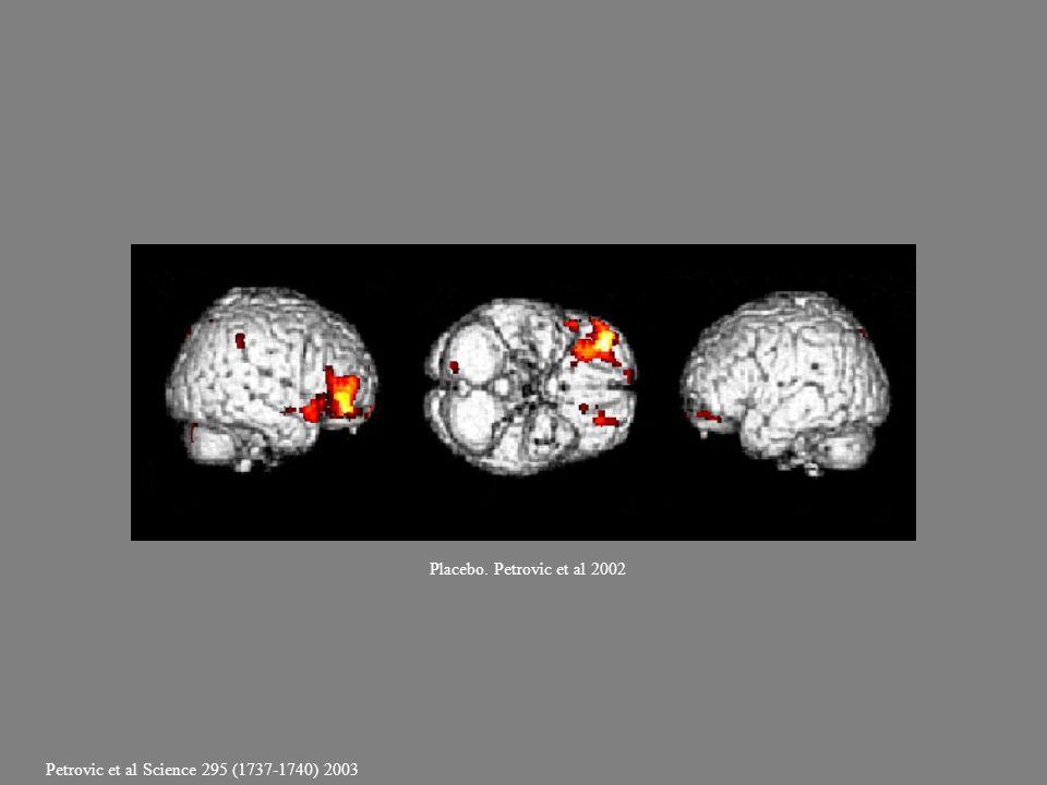 Placebo. Petrovic et al 2002 Petrovic et al Science 295 (1737-1740) 2003