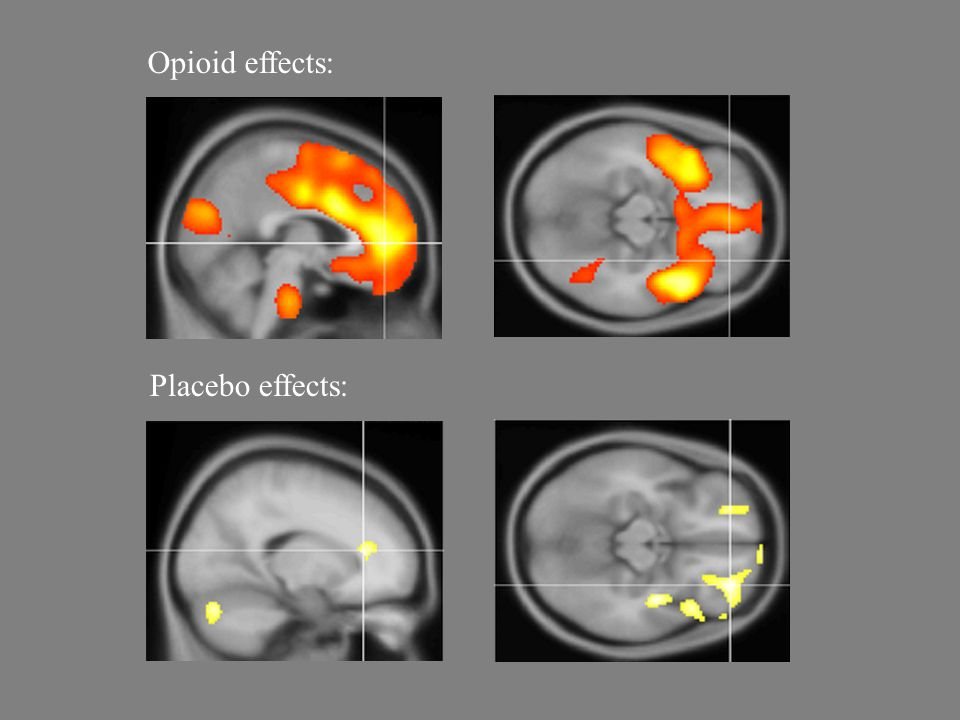 Opioid effects: Placebo effects: